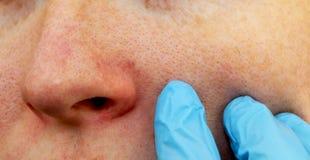 Cuperosis op de neus van een jonge vrouw Acne op het gezicht Onderzoek door een arts royalty-vrije stock afbeeldingen