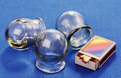 Cupping glass. royalty free stock photography