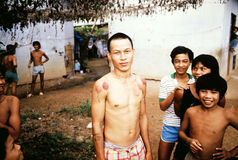 Cupping marks. Young man from Vietnam received treatment for pain, using traditional cupping, to stimulate circulation, for aches, fevers, general ailments, at Royalty Free Stock Photos