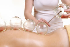 Cupping massage the back of a woman royalty free stock photography