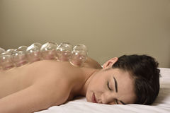 Cupping side view Chinese Medicine Stock Photo