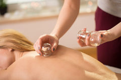 Cupping therapy Royalty Free Stock Image