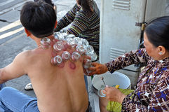 Cupping treatment therapy, Saigon, Vietnam Royalty Free Stock Images