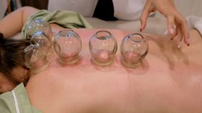 Cupping treatment on woman back stock footage
