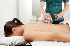 Cuppping Acupuncture Treatment on Female Back. Acupuncture therapist placing a cup on the back of a female patient Royalty Free Stock Photos