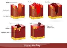 Cura da ferida Fotos de Stock