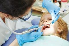 Cure odontoiatriche del bambino Fotografie Stock
