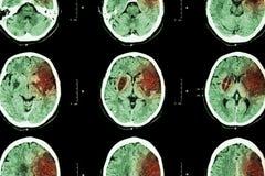 Curso isquêmico: (CT do infarto cerebral da mostra do cérebro no frontal esquerdo - temporal - lóbulo parietal) (fundo do sistema Imagem de Stock Royalty Free