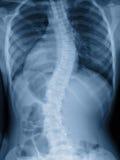 Curva espinal de la demostración de la radiografía de la película de la escoliosis en adolescente Imagen de archivo