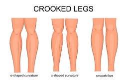Curvatura de las piernas ilustración del vector