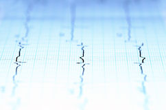 Curved lines on paper. Patient's electrocardiogram on paper in the hospital Royalty Free Stock Images