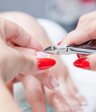 Cut cuticle on the female forefinger Stock Images