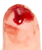 Cut finger Royalty Free Stock Photos