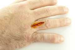 Cut On Hand. A cut on hand treated with iodine on white stock image