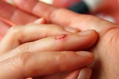 The cut on his finger Royalty Free Stock Photos