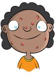 Cute black girl with acne problem Stock Photos