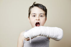 Cute boy with broken arm Stock Images