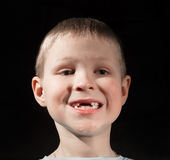 Cute boy missing some front teeth. Smiling Stock Photos