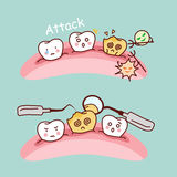 Cute cartoon tooth cavity Royalty Free Stock Images