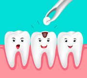 Cute cartoon tooth character. Filling tooth, dental care concept. Illustration isolated on green background Royalty Free Stock Photography