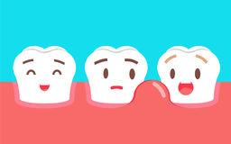 Cute cartoon tooth character with gum problem. Dental care concept, swollen gums or periodontal disease. Illustration Royalty Free Stock Photo