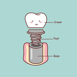 Cute cartoon tooth implant anatomy Stock Photo