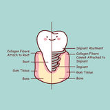 Cute cartoon tooth implant anatomy Royalty Free Stock Images