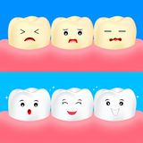 Cute cartoon white and yellow teeth. Before and After,. Whitening oral care concept.  Dental veneers on human tooth. Deep cleaning, clearing tooth process Stock Image
