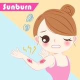 Cartoon woman with sunburn problem. Cute cartoon woman with sunburn problem on blue background Royalty Free Stock Image