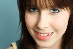 Cute Girl With Braces Royalty Free Stock Photos