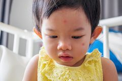 Cute little asian girl with allergy red spot face. Cause by insect bite royalty free stock images