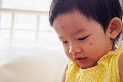 Cute little asian girl with allergy red spot face. Cause by insect bite royalty free stock photography