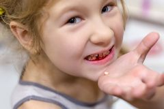 Cute little child has just lost the first milk tooth stock image