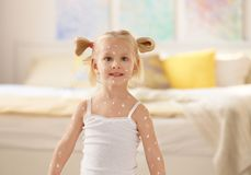 Cute little girl with chickenpox. At home Stock Photo