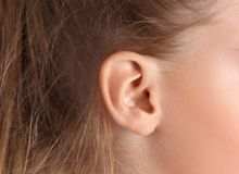 Cute little girl with hearing problem. Closeup royalty free stock images