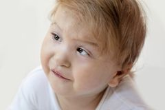 Cute one year old disabled child portrait close-up - image stock photo
