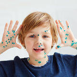 Cute young boy, kid having chicken pox, that is cured with brill Stock Photos