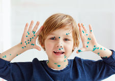 Cute young boy, kid having chicken pox, that is cured with brilliant green antiseptic. Young boy, kid having chicken pox, that is cured with brilliant green Stock Photo