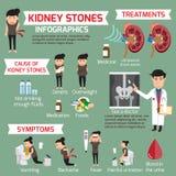 Cynaderki kamień infographic Szczegółów medyczni ustaleni elementy Obraz Royalty Free