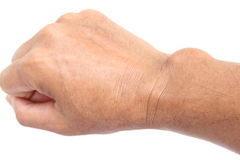 Cyst on a hand Royalty Free Stock Photo