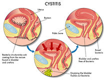 Cystitis. Medical illustration of the effects of the cystitis infection vector illustration