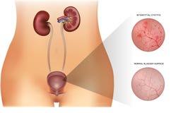 Cystitis stock illustration