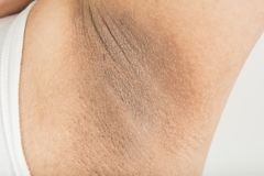 Czarna pachy skóra zdjęcie stock