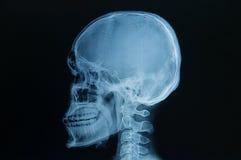 Czaszek promieniowań rentgenowskich wizerunek Obrazy Royalty Free