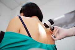 Czerniaka diagnoinspectionsis lekarka egzamininuje cierpliwej ` s gramocząsteczki zdjęcia stock
