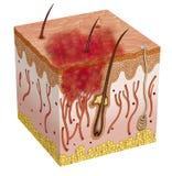 Carcinoma Obraz Stock