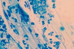 Czerwonych komórek microbacterium gruźlica Obraz Royalty Free