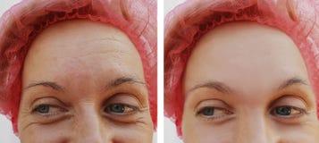 Czoło kobieta marszczy rezultaty przed i po kosmetycznym procedury usunięciem zdjęcia royalty free