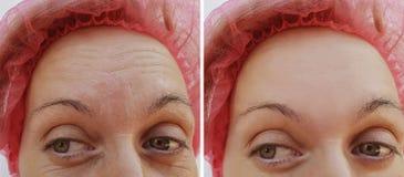 Czoło kobiety zmarszczenia przed i po kosmetycznym procedury usunięciem obraz stock