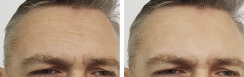 Czoło mężczyzna zmarszczenia przed i po kosmetologią, skutek fotografia stock